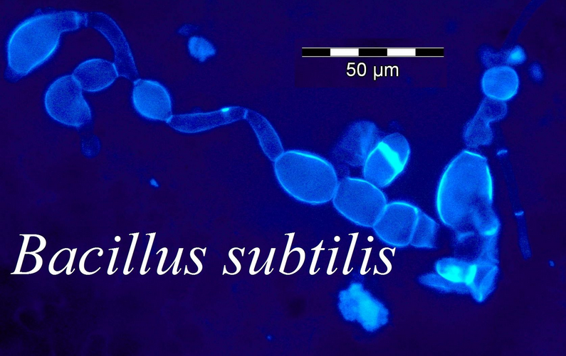 microbiology unknown bacillus subtilis